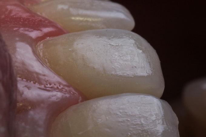 Мал. 7. Вигляд зубів після завершення нанесення та адаптації шарів композиту