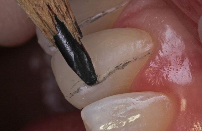 Мал. 8. Для візуалізації контурів і граней зуба зручно користуватися олівцем