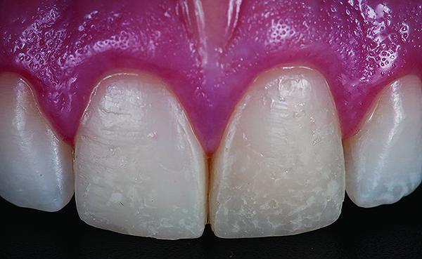 Фото 1. Вигляд до препарування (клінічний випадок виготовлення вініра з полевошпатної кераміки – матеріал групи CL–I)