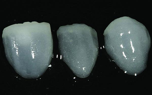 Фото 7. Вініри, виготовлені з матеріалів групи CL–IIa з мінімальною товщиною шару матеріалу в ділянці ріжучого краю