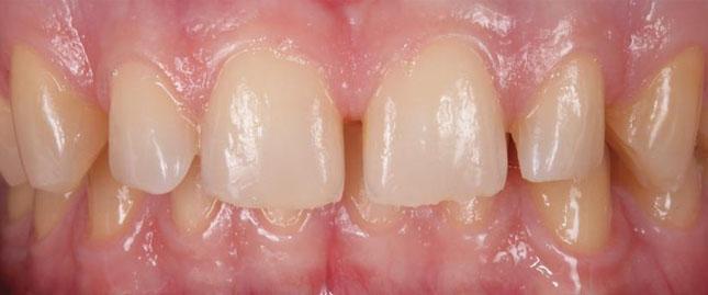 Фото 1. Зовнішній вигляд уражених ерозією зубів