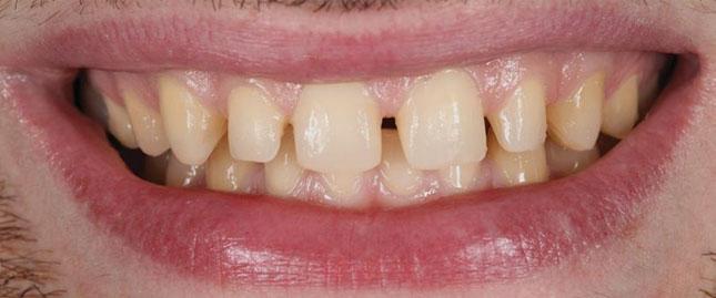 Фото 12. Вигляд передніх зубів після препарування