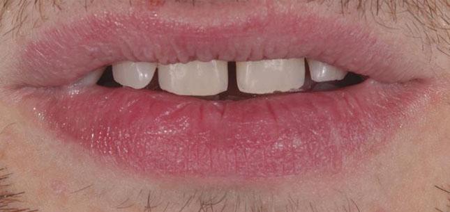 Фото 2. Вигляд посмішки пацієнта з ураженими ерозією зубами
