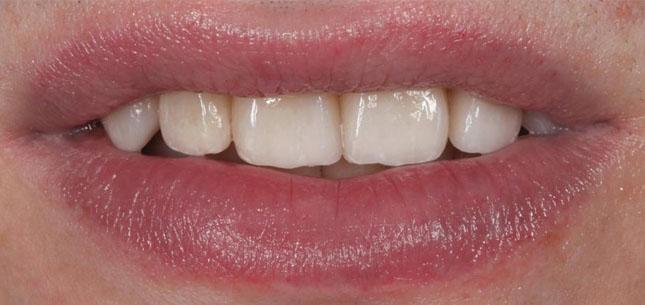 Фото 20-21. Вигляд зубів з остаточними реставраціями: відновлення функціональних і естетичних порушень