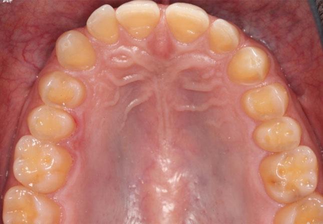 Фото 3. Оклюзійний вигляд верхньої щелепи: ознаки втрати твердих тканин емалі і дентину