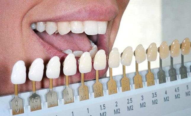 Підбір кольору штучних зубів