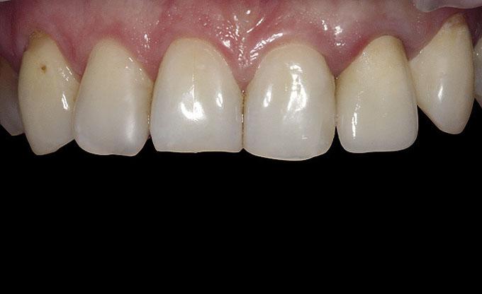 Мал. 16. Вигляд керамічної коронки на основі діоксиду цирконію LAVATM зуба 22 наступного дня після фіксації