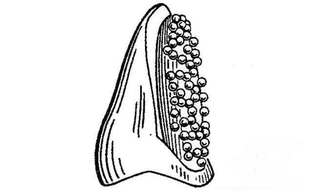 Ретенційні кульки на восковому каркасі