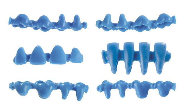 Різновиди суцільних «інзом» для різних груп зубів