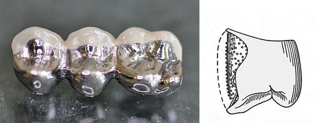 Різновид метало-акрилового незнімного протеза