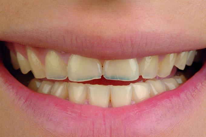 Мал. 1. Первинна клінічна ситуація: явно виражена генералізована ерозія зубів