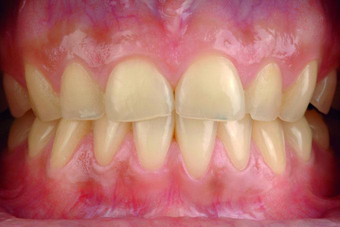 Мал. 2. Первинна клінічна ситуація: явно виражена генералізована ерозія зубів