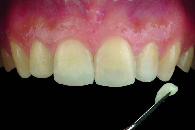 Мал. 3. Попереднє моделювання композитом об'єму втрачених тканин зубів фронтальної групи