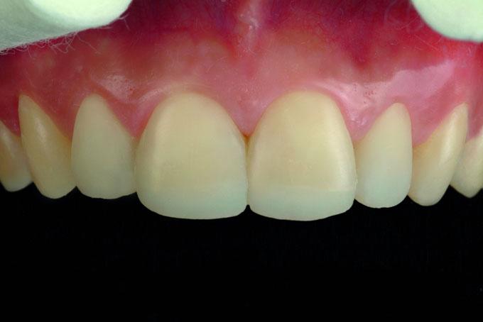 Мал. 15. Клінічний результат після нанесення двох шарів композиту: дентинного і емалевого