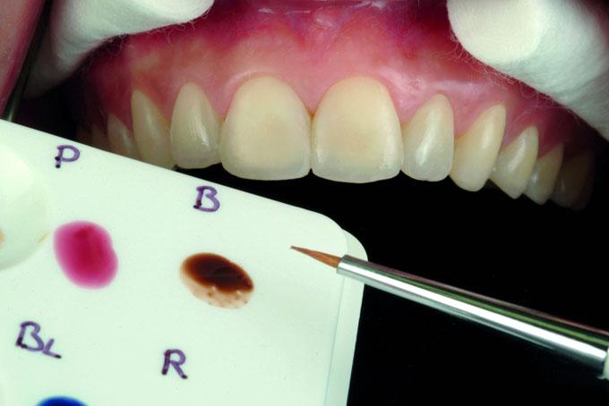 Мал. 16. Нанесення зовнішніх барвників OPTIGLAZE colour, що індивідуалізують, для підвищення рівня інтеграції реставрації з природними зубами