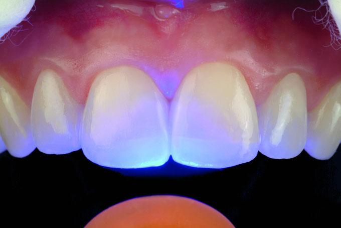 Мал. 17. Нанесення зовнішніх барвників OPTIGLAZE colour, що індивідуалізують, для підвищення рівня інтеграції реставрації з природними зубами