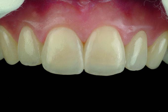 Мал. 18. Нанесення зовнішніх барвників OPTIGLAZE colour, що індивідуалізують, для підвищення рівня інтеграції реставрації з природними зубами