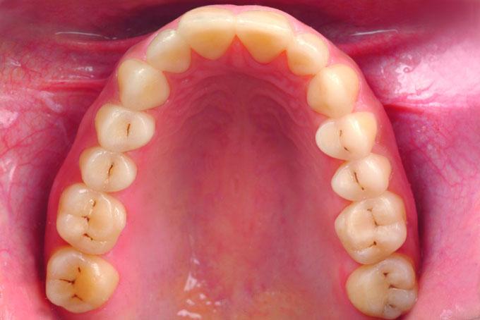 Мал. 19б. Верхньощелепна зубна дуга до і після повної реконструкції композитом