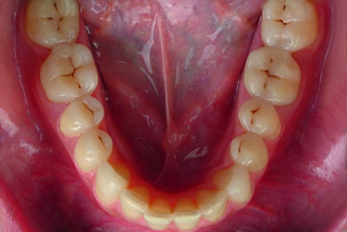 Мал. 20б. Нижньощелепна зубна дуга до і після повної реконструкції композитом