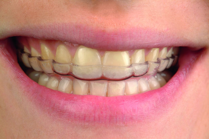 Мал. 25. Нічна оклюзійна капа для повсякденного застосування з метою запобігання повторного зношування зубів