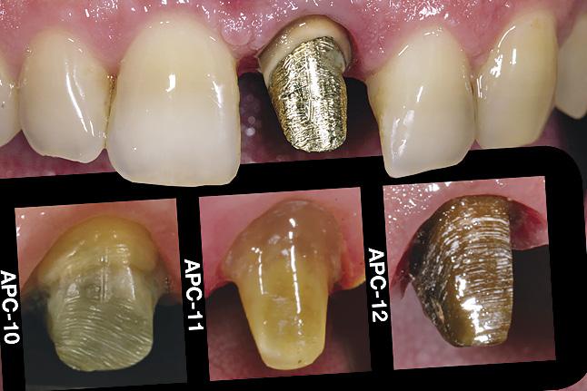 Мал. 1. Початкова ситуація. Визначення кольору кукси (у даному випадку вкладки) зуба за допомогою шаблону Simple Enamel and Prep Color Guide