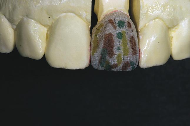 Мал. 11. Використовуючи маркер, задаємо морфологію зуба і формуємо тонку текстуру поверхні