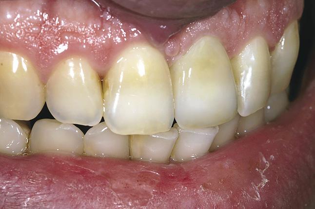 Мал. 12. Бічний вигляд готової коронки, зафіксованої в порожнині рота, демонструє повну кольорову гармонію
