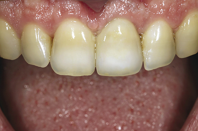 Мал. 13. Фронтальний вигляд готової коронки, зафіксованої в порожнині рота, демонструє повну кольорову гармонію