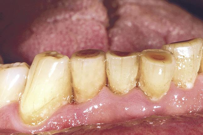 Мал. 26. Коронка зафіксована в порожнині рота. Спостерігається повна кольорова інтеграція