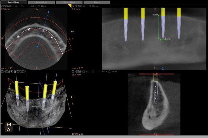 Фото 1. КЛКТ-знімок нижньої щелепи із запланованими імплантатами