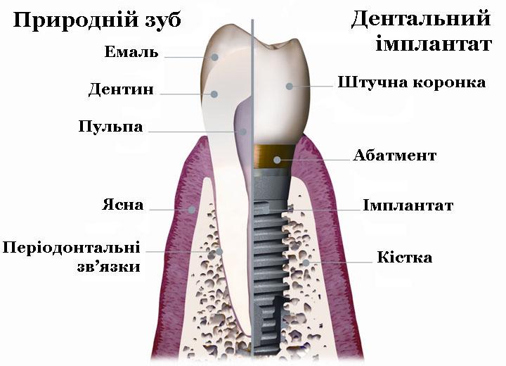Імплантація_14