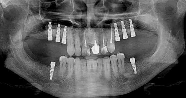 Ортопантомограма зі встановленими класичними імплантатами на верхню та нижню щелепи