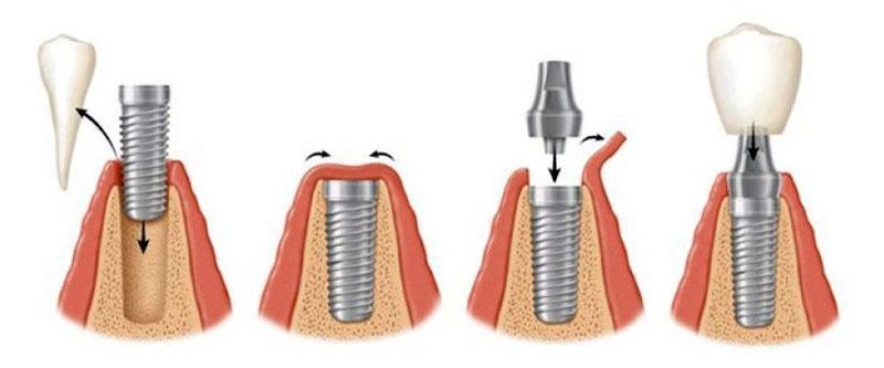 Схематичне зображення двоетапної імплантації