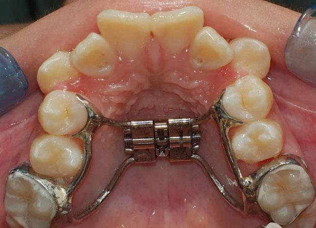 Розширення верхньої зубної дуги