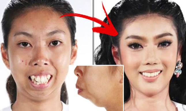 Результат комплексного ортодонтичного лікування