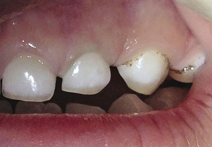 Мал. 7. Стан ясен після чищення Pro-Cup зуба 6.2