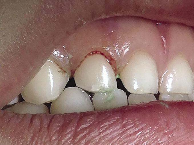 Мал. 8. Кровотеча після проведення професійного чищення звичайною полірувальною щіткою зуба 5.2 у того ж пацієнта