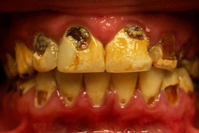 Мал. 1. Швидкоплинний карієс постійних зубів у дітей