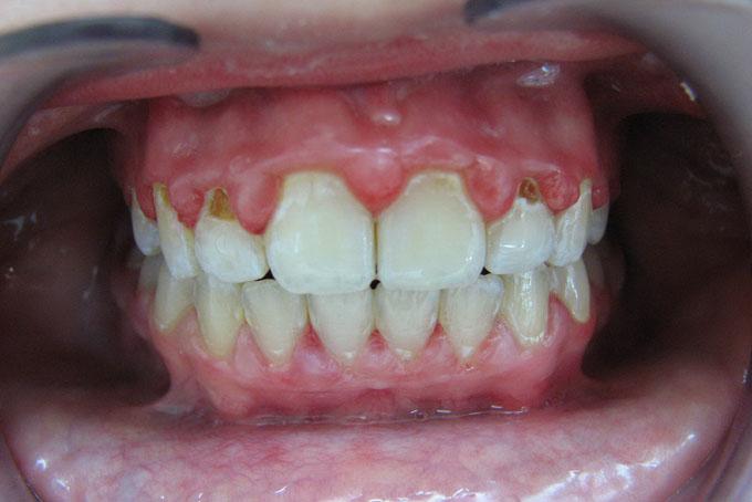 Мал. 2. Швидкоплинний карієс постійних зубів у дітей