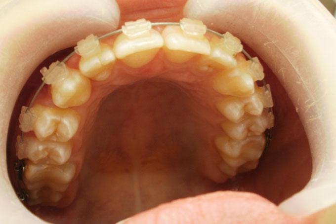 Мал. 6. Через 9 місяців на етапі ортодонтичного лікування