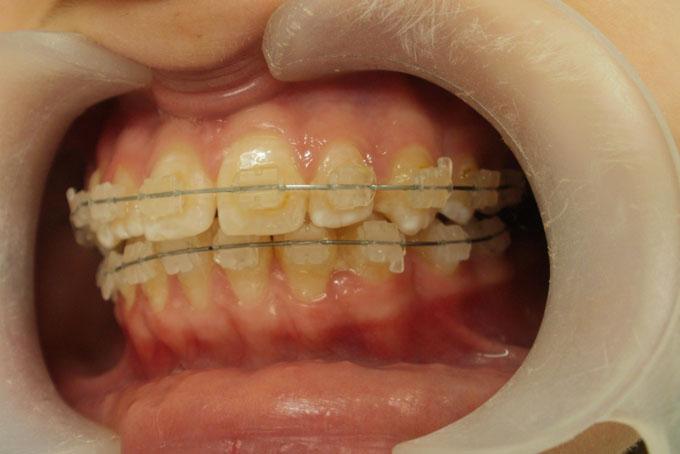Мал. 7. Через 9 місяців на етапі ортодонтичного лікування
