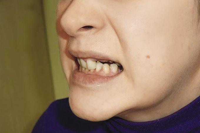 Мал. 6. Посмішка до лікування