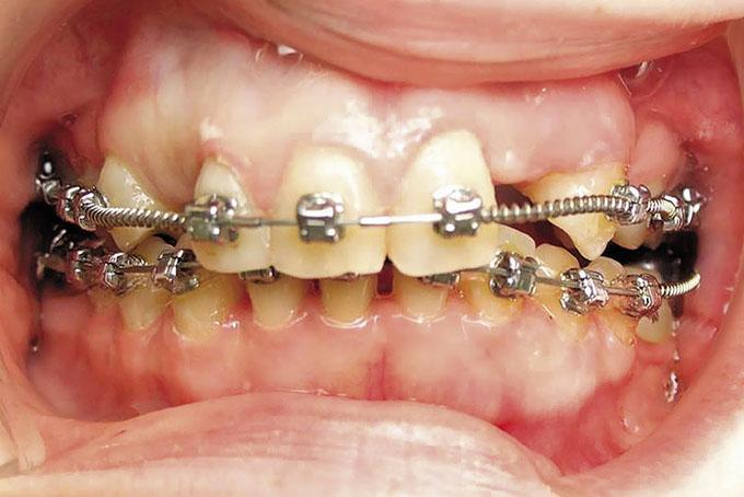 Мал. 7. Після ортодонтичної підготовки