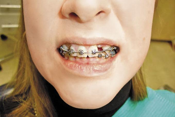 Мал. 10. Посмішка після ортодонтичної підготовки