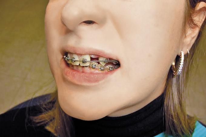 Мал. 11. Посмішка після ортодонтичної підготовки