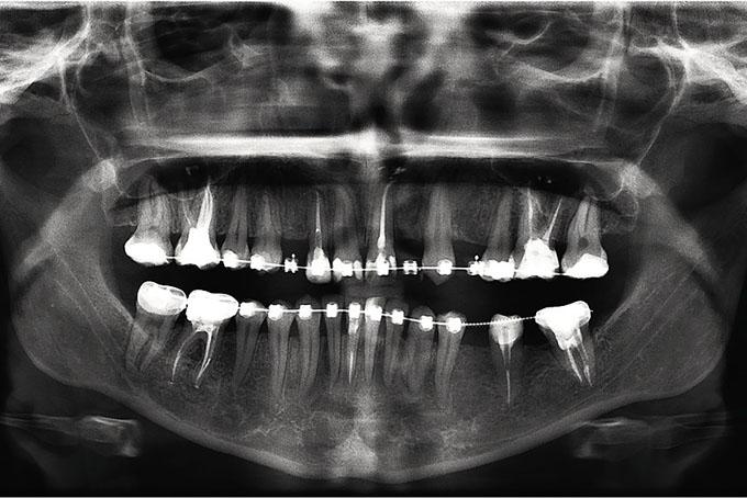Мал. 12. ОПТГ після ортодонтичної підготовки