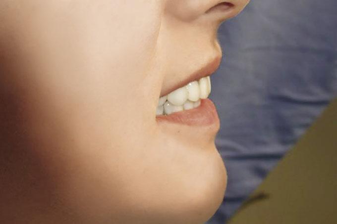 Мал. 19. Посмішка після лікування