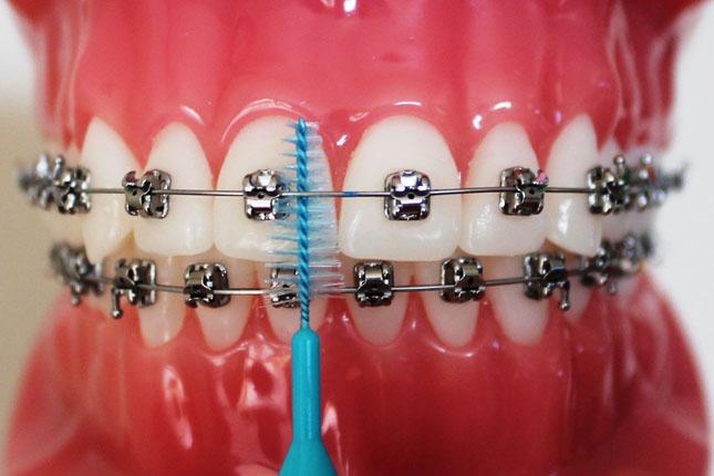 Догляд за брекетами – дуже важлива складова процесу ортодонтичного  лікування. ed62cb26d6d30