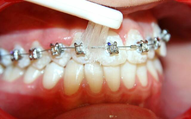 Догляд за брекетами – Про зуби 4b0805fa1fe88