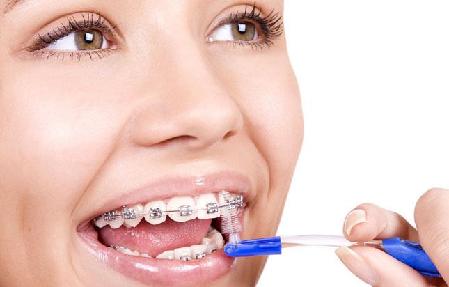 Спеціальні зубні нитки (суперфлоси) 34c7475186529